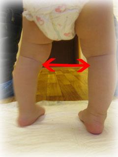 Кривизна ног ребенок массаж