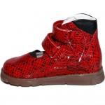 Мальвина красный - Футмастер - Детская ортопедическая обувь